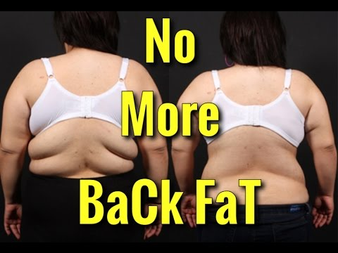 How to Lose Back Fat – Top 4 Exercises