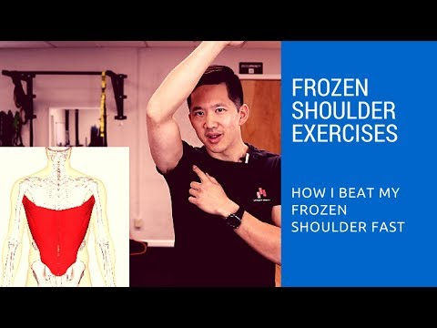 Frozen shoulder exercises – how I got relief in just two days